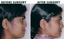 Cleft maxillary advancement Surgery