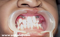 Intraoral distraction after Surgery