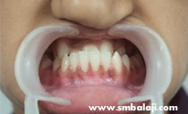 Intraoral distraction before