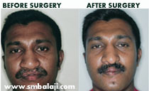 abbe-flap surgery in India.