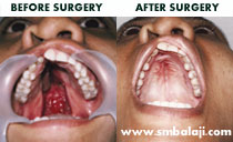 cleft palate Surgeryn India