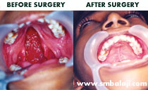 cleft palate surgery in India
