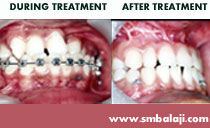orthodontic alignment of teeth