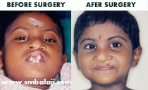 premaxillary setback surgery before after