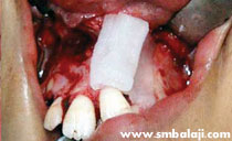 rhBMP-2 placed in alveolar defect avoiding bone graft surgery