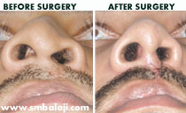 rhinoplasty Nose correction surgery