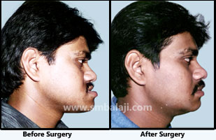 Jaw deformity surgery - Balaji Dental