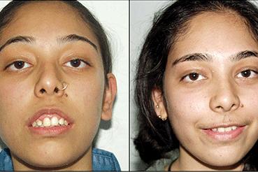 Jaw Deformity Correction