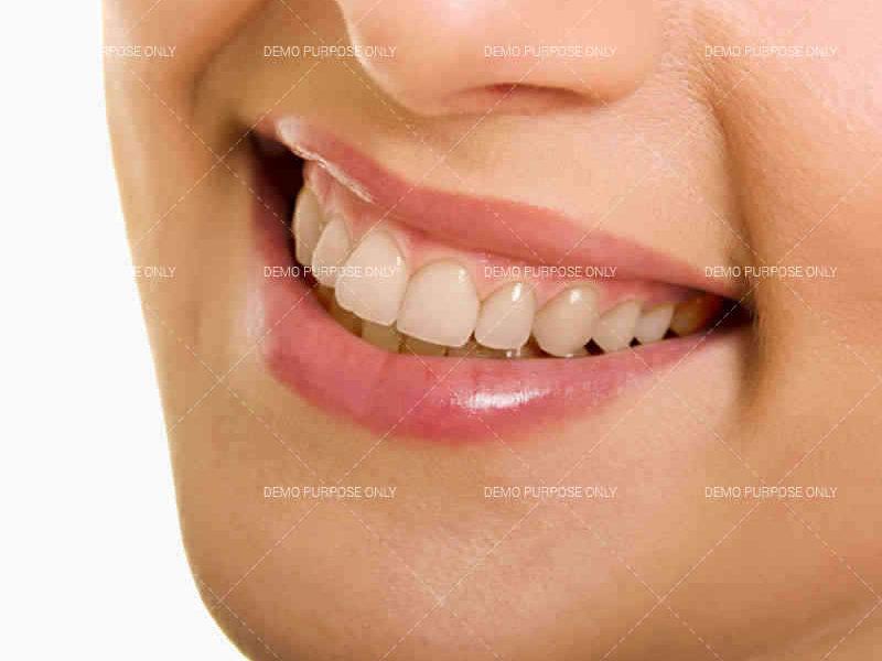 Dentist Before