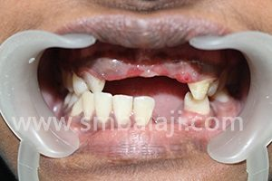 A young girl lost multiple teeth in a vehicular accident