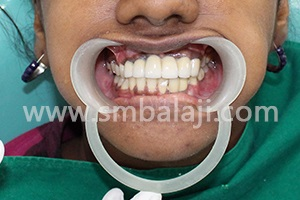 After complete treatment