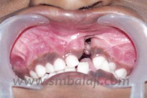 Alveolar (tooth-bearing jaw bone) cleft