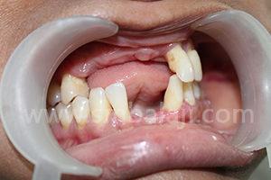 Before surgery multiple missing teeth
