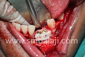 Bone graft placed in deficient region in lower jaw