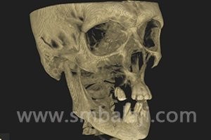 CBCT image showing extremely grossly inadequate bone