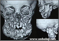 Ct Scan Image Showing Tumour In Upper And Lower Jaw