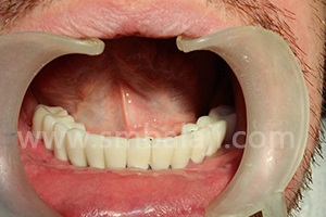 Ceramic prosthesis placed resembling natural teeth