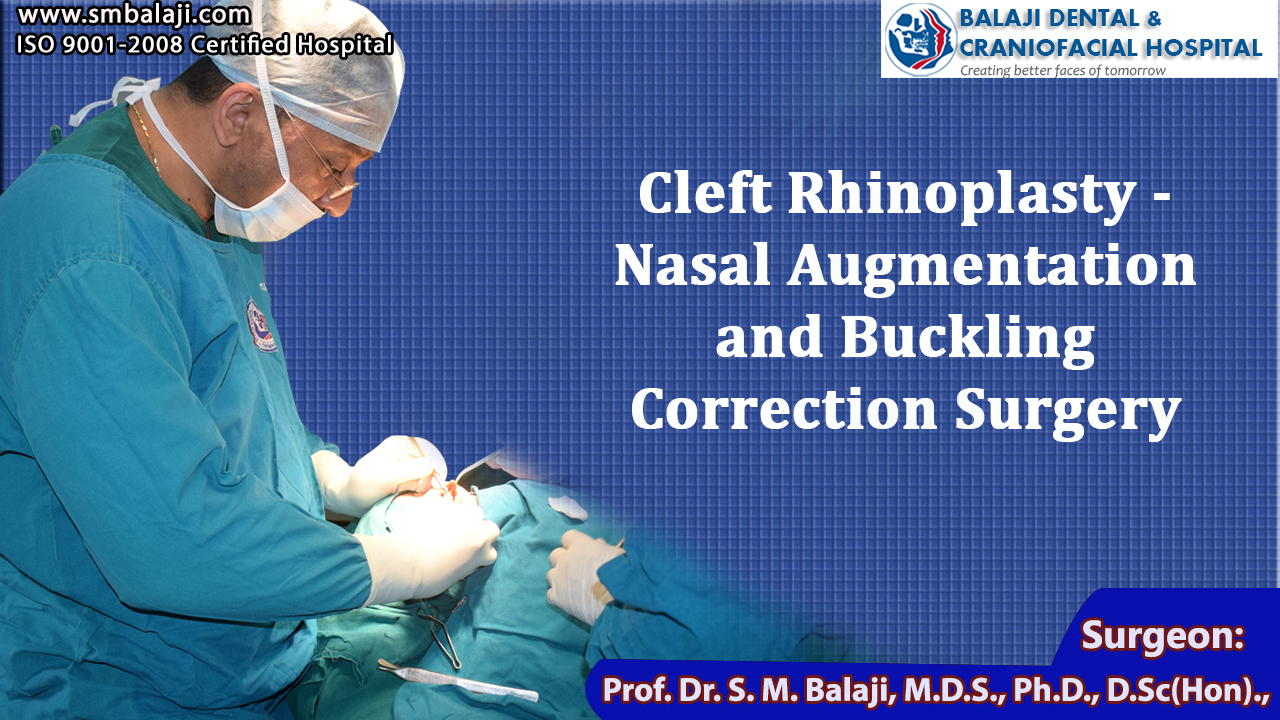 Cleft Rhinoplasty - Nasal Augmentation and Buckling Correction Surgery