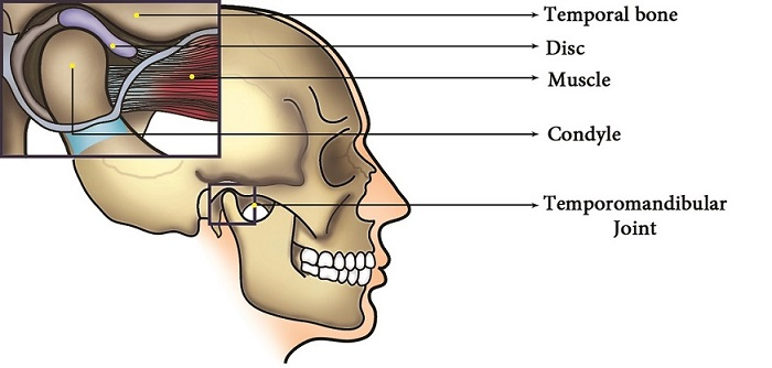 TMJ surgery in india