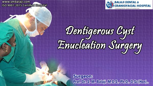 Dentigerous Cyst Enucleation surgery