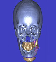 Distraction Osteogenesis treatment planning