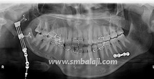 During active distraction segmented jaw bone pushed apart & new bone formed in resultant gap