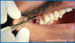 During extraction- Accessing the tooth from the cheek sid