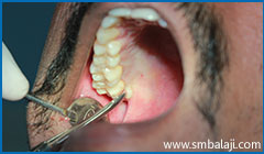 During extraction- accessing the tooth from the tongue side