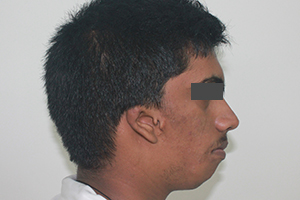 Ear deformity in patient with hemifacial microsomia