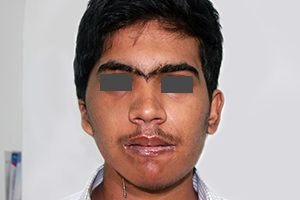 Facial asymmetry corrected with distraction osteogenesis