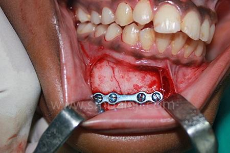 Fractured Bone Stabilized Using Bone Plate