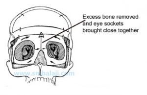 Excess bone removed and eye sockets brought close together -Hypertelorism