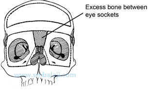 Excess bone between eye sockets -Hypertelorism