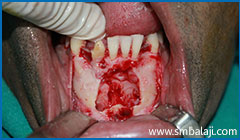 Immediately After Surgical Removal Of Impacted Lower Canine Teeth