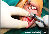 Implants being placed in the lower jaw