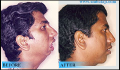Lower jaw defect due to TMJ ankylosis