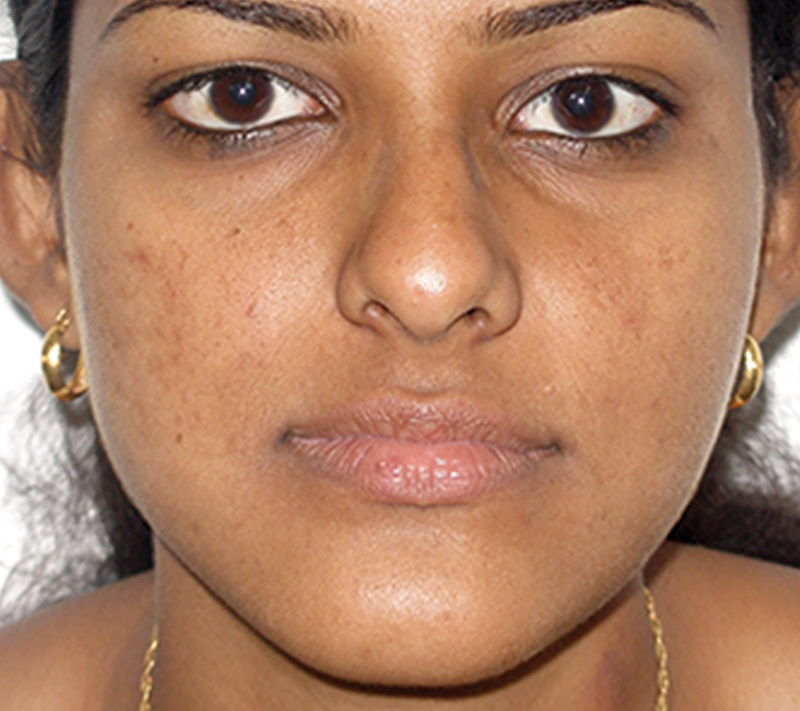 Jaw Reconstruction In India After Surgery Picture