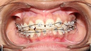 Malaligned Teeth Management | Orthodontics