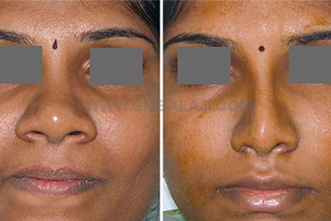 Nose reduction surgery of a very broad nose