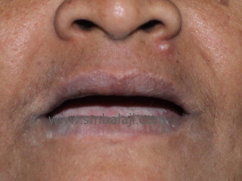 Patient with complete tooth loss