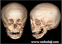 Postoperative CT scan image