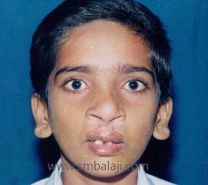 Premaxillary setback after surgery