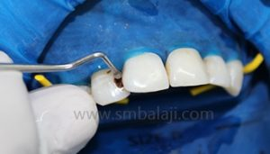 Restorative dentistry / Management of decayed teeth