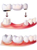 Schematic diagram of dental bridge