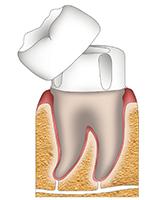Schematic diagram of dental crown