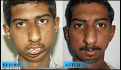 Severe mandible deformity due to TMJ ankylosis