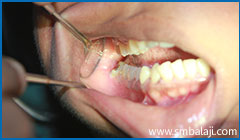 Severely Decayed And Impacted Lower Right Wisdom Tooth