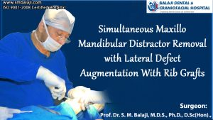 Maxillo Mandibular Distractor Removal