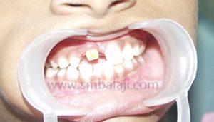 Kidz Korner | Specialized dentistry for kids