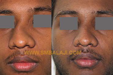 Surgical correction of a crooked nose that resulted from an accident